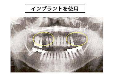 天然歯への影響・比較