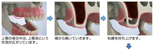 上顎の骨の中は、上顎洞という空洞が広がっています。 横から開いていきます。 粘膜を持ち上げます。