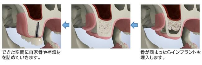 できた空間に自家骨や補填材を詰めていきます。骨が固まったらインプラントを埋入します。