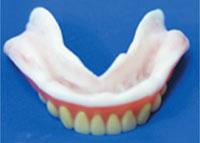 仮の入れ歯