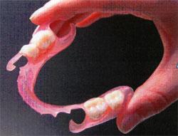 精密金属床義歯