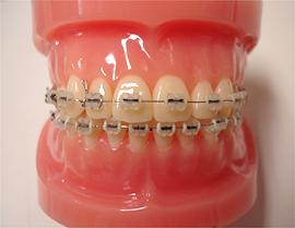 歯を抜かない