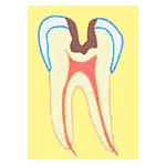 C2の虫歯