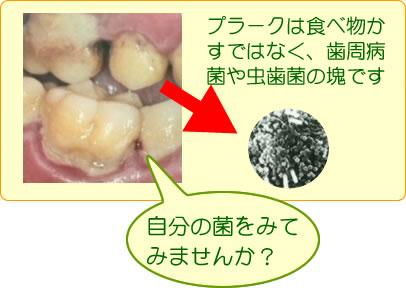 細菌の塊(プラーク)