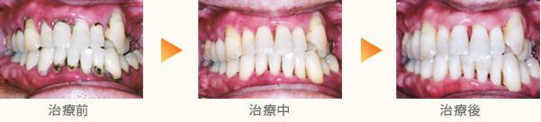 歯周病を薬で治す治療例
