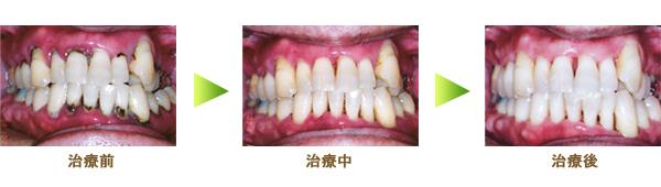 歯周病内科治療の治療例